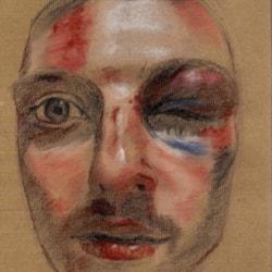 Self portrait after assault